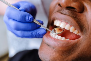 Gum disease,summerville dentist, pineland family dental, pineland dental, dentist office, family dentist, general dentist, cosmetic dentist
